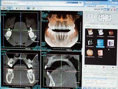 dental monitor