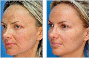 skin-resurfacing.jpg